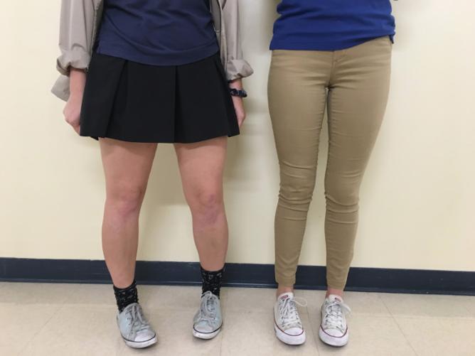 Skirt debate rages